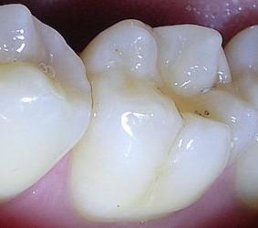 Zahnformen-molar Kopie