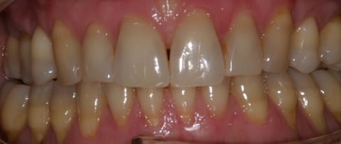 Zahnformen